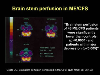 Figure 10. Brain stem perfusion