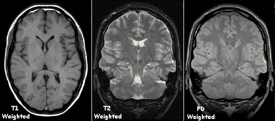 Brain abnormalities in ME/CFS | ME Research UK