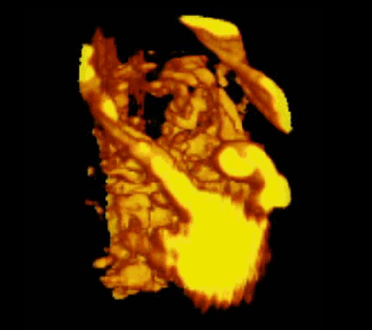 A 3D Power doppler image of vasculature in 20-week placenta (Nevit Dilmen bit.ly/1UQ06aD)