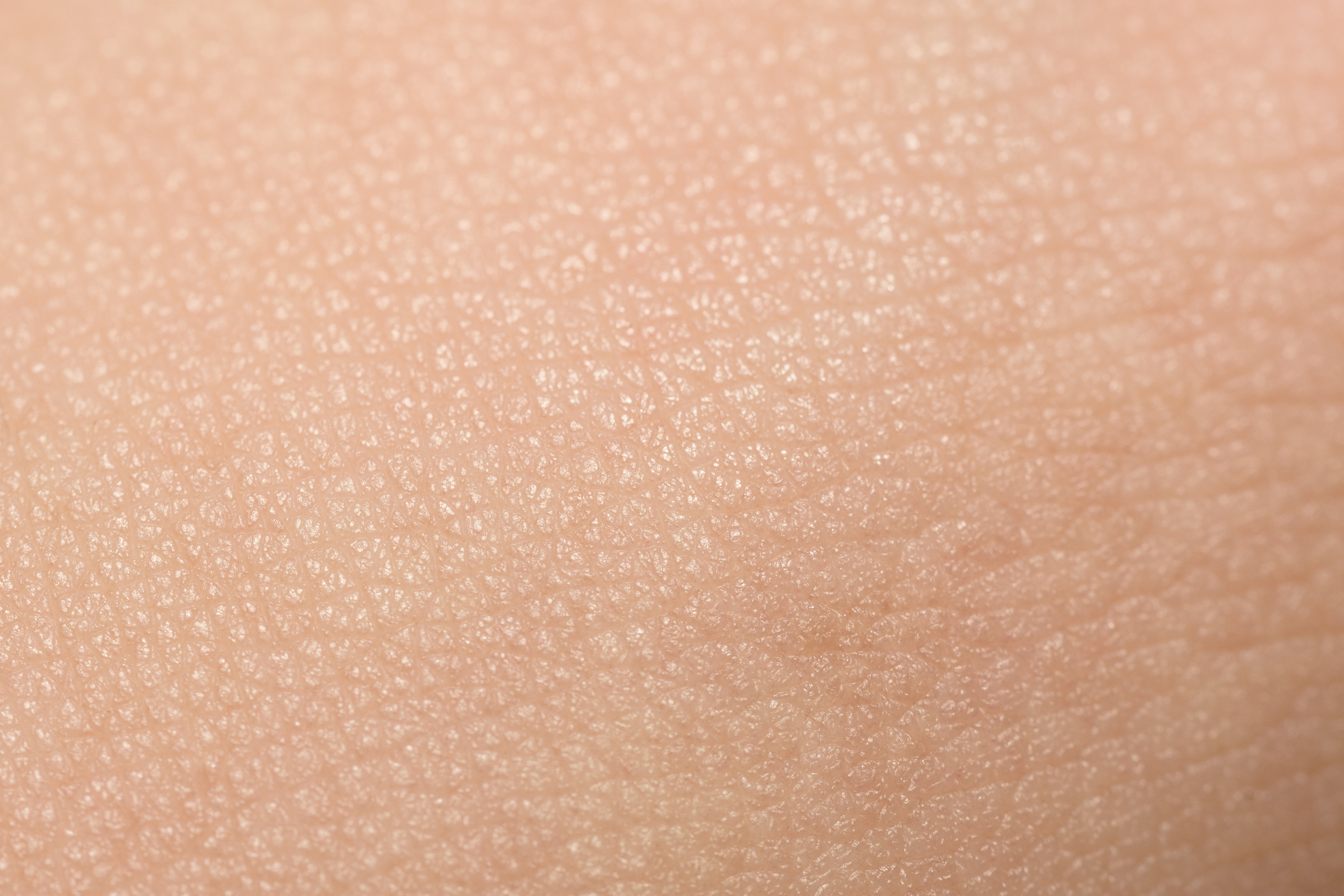 Psoriasis increases the risk of 'CFS'