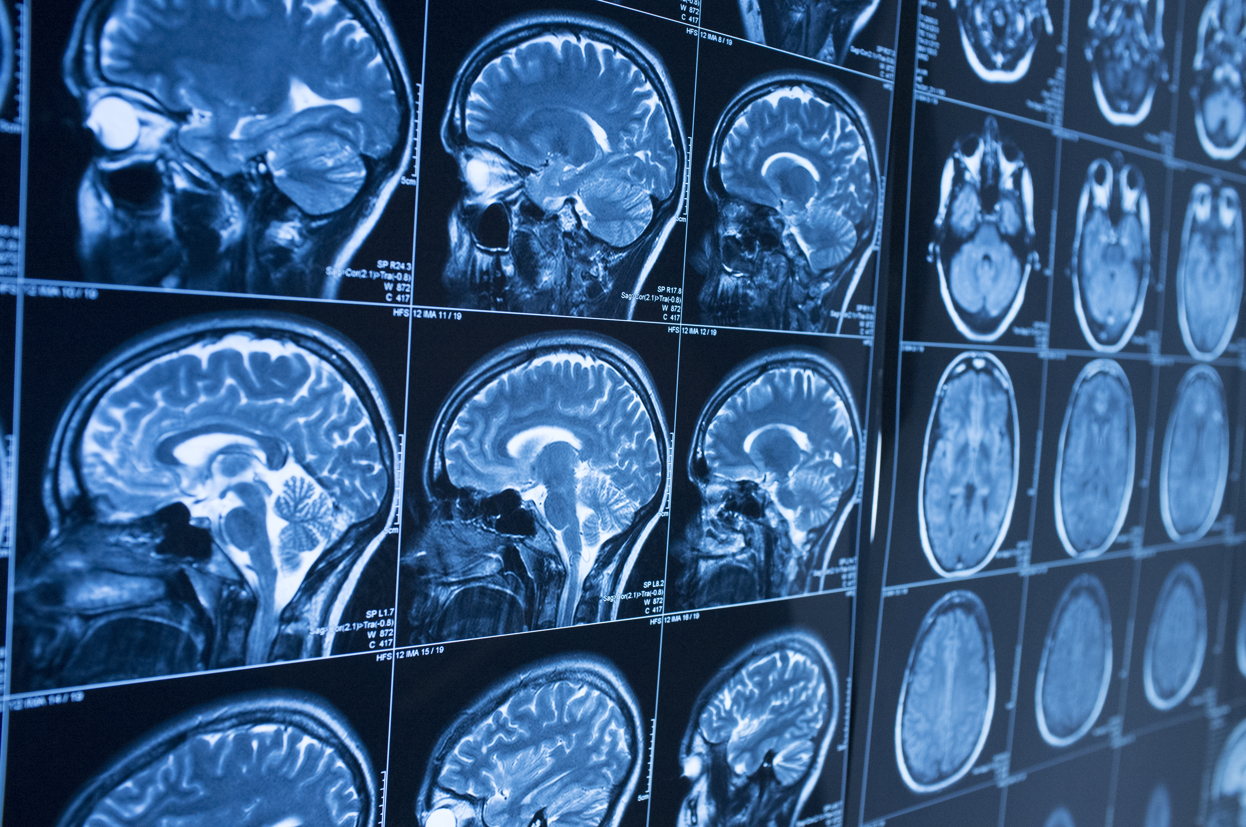 Intra-brainstem connectivity in ME/CFS